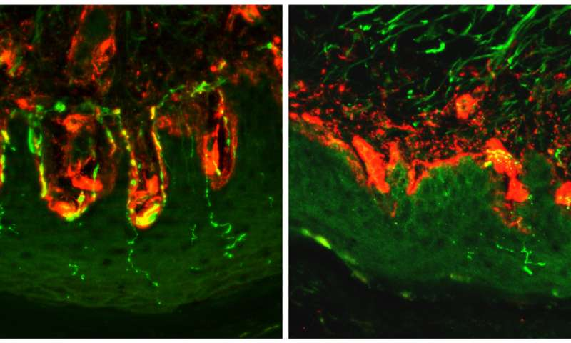 Researchers uncover the source of diabetic pain