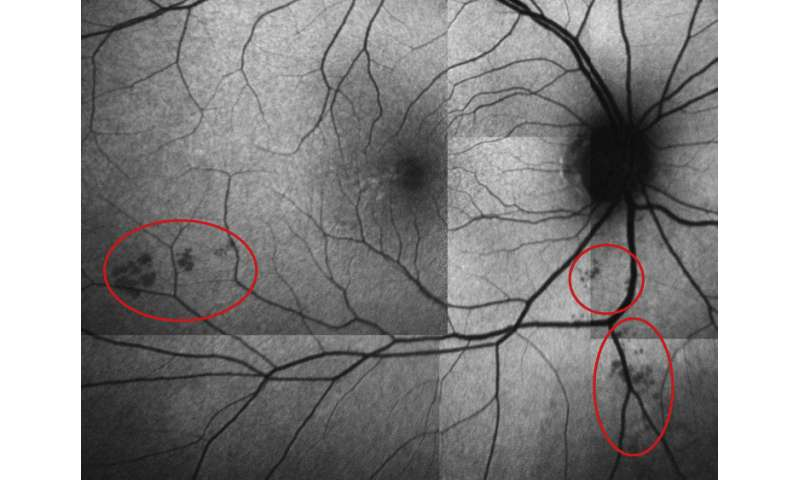 Researchers seek to catch Alzheimer's early by peeking into the eyes