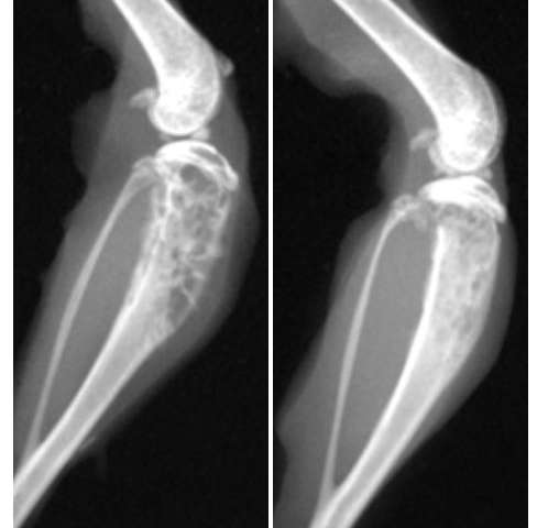 mets from breast cancer bone
