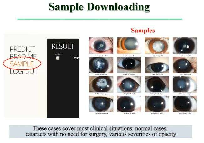 Convolutional neural network able to identify rare eye disorder