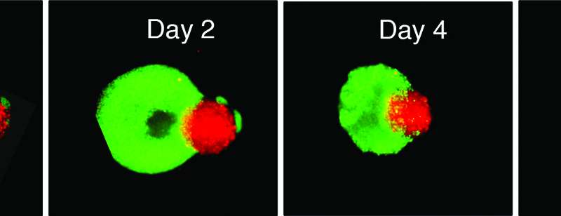 Revolutionary Approach For Treating Glioblastoma Works