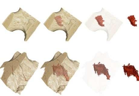 Drug used to treat weak bones associated with micro-cracks