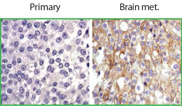 Brain microenvironment makes HER2-positive breast cancer metastases resistant to treatment