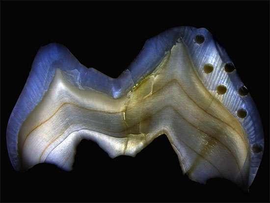 Les chercheurs trouvent un biomarqueur dans les dents à feuilles caduques pour établir l'âge du sevrage