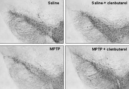Drugs targeting the beta2-adrenoreceptor linked to Parkinson's disease