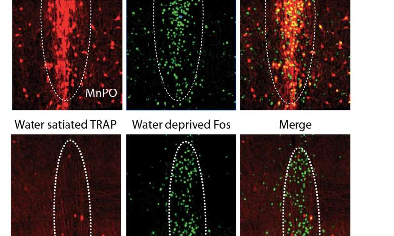Research uncovers the neurons that drive thirst