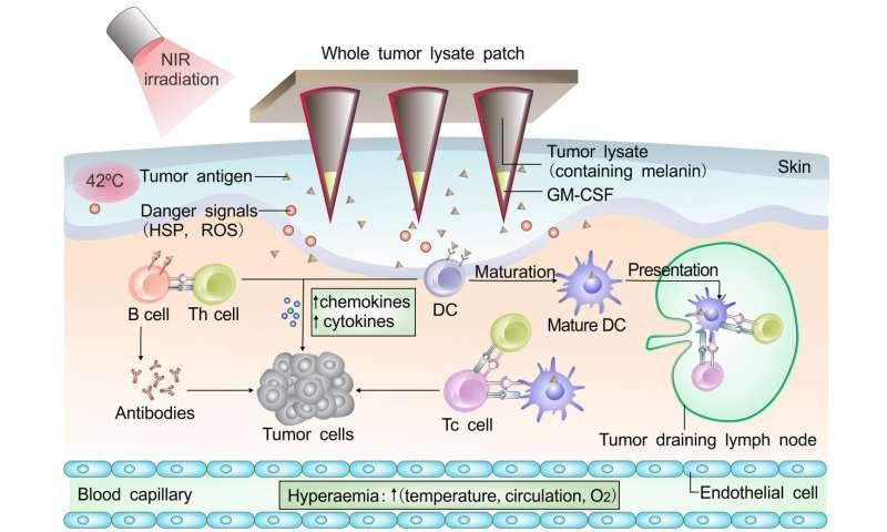 L'immunoterapia del cancro utilizza melanina contro il melanoma