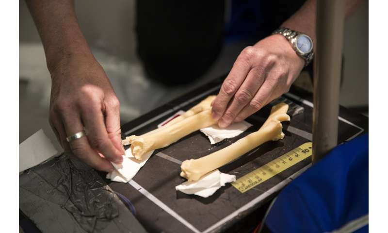 Radiographs of Dolly's skeleton show no signs of abnormal osteoarthritis
