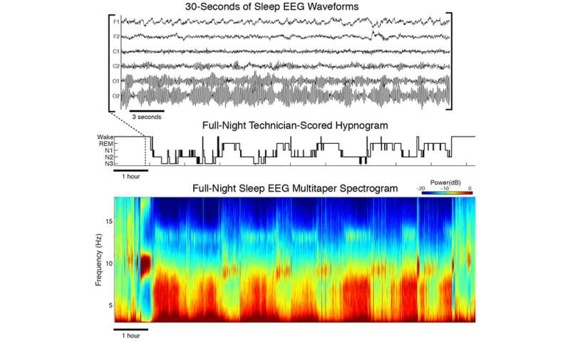 Advanced EEG analysis reveals the complex beauty of the sleeping brain