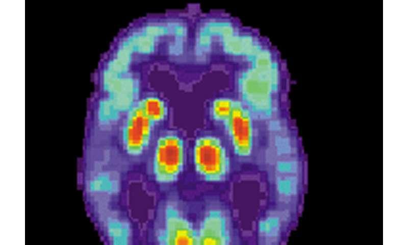 New culprit of cognitive decline in Alzheimer's