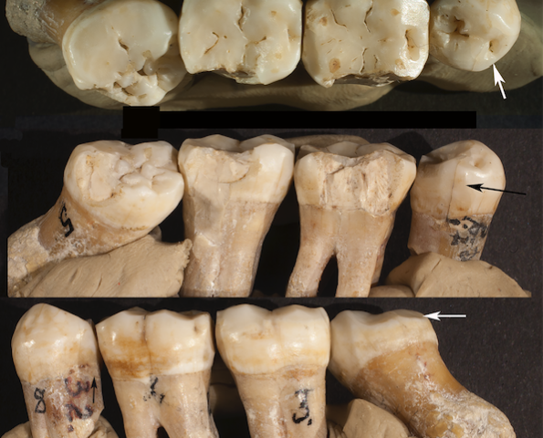 Analysis of Neanderthal teeth grooves uncovers evidence of prehistoric dentistry