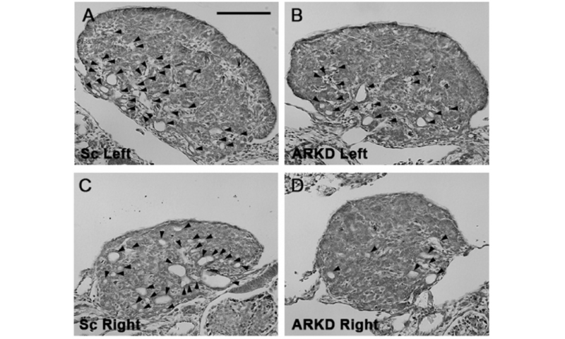 Androgen plays key role in ovarian development