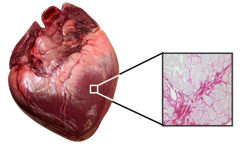 An international study opens the door to personalized treatment for heart failure