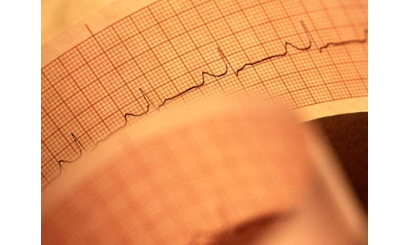 Anterior T-wave inversion in 2.3 percent of healthy young adults