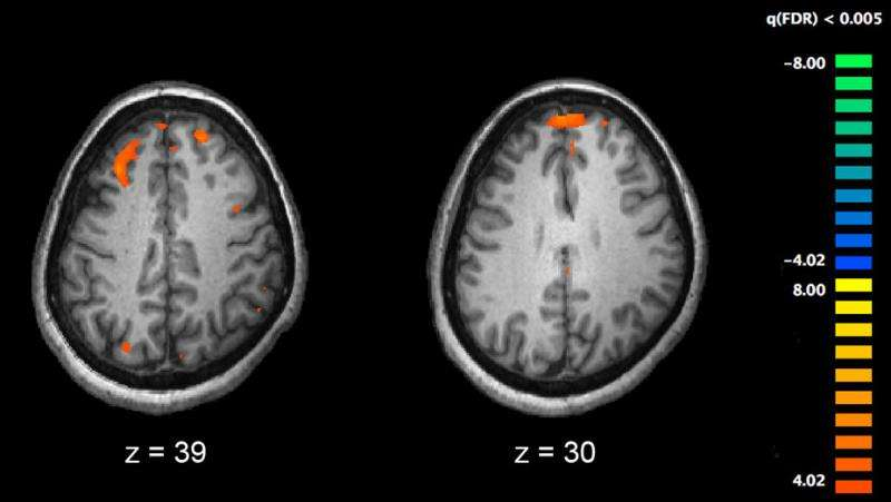 A radical rethink is needed to understand the brain
