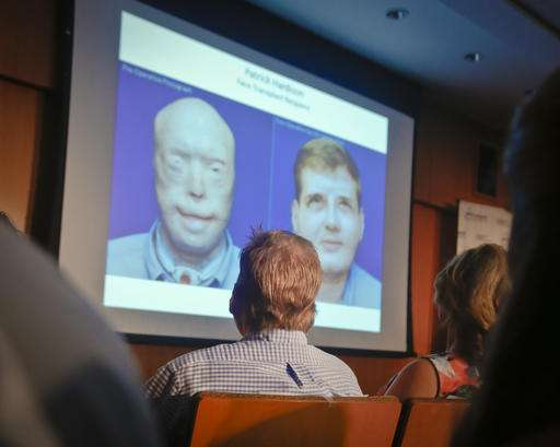 Are face transplants still research, or regular care?