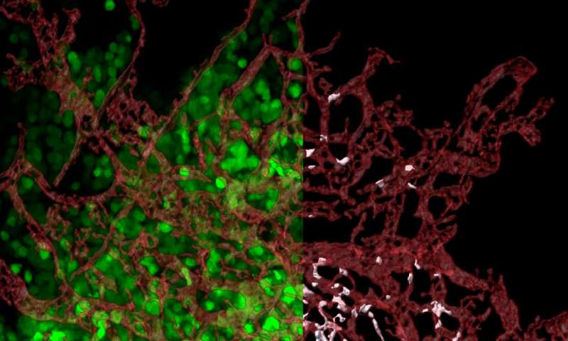 At last, a clue to where cancer metastases are born