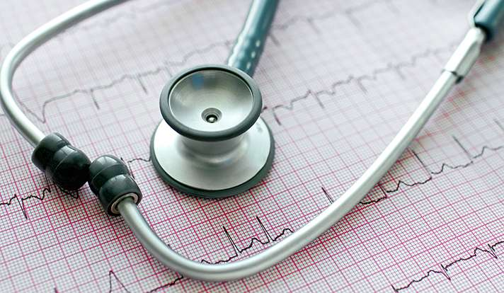 Atrial fibrillation hospitalizations rise as mortality rates decline