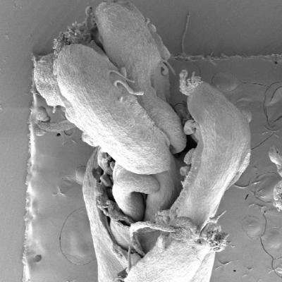 Auxin tells the stem cells to stop growing and the gynoecium to start forming in flowers