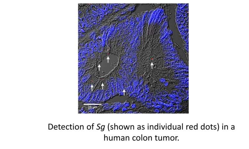 Bacterium actively drives colorectal cancer tumor cell growth