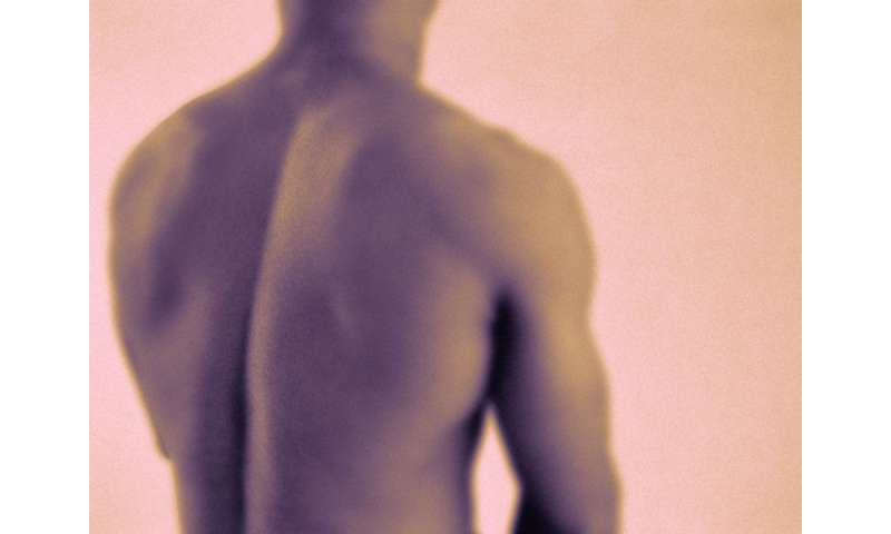Basivertebral nerve ablation beneficial for chronic back pain
