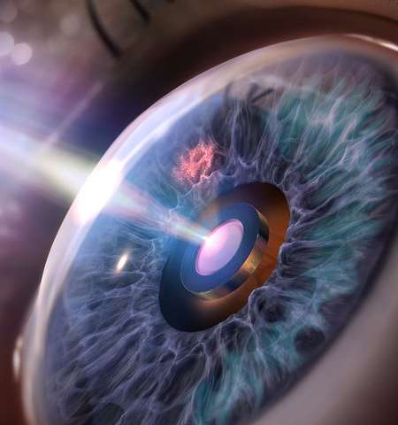 Black silicon prevents eye implant from gumming up