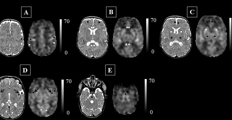 Blood flow altered in brains of preterm newborns vs. full-term infants