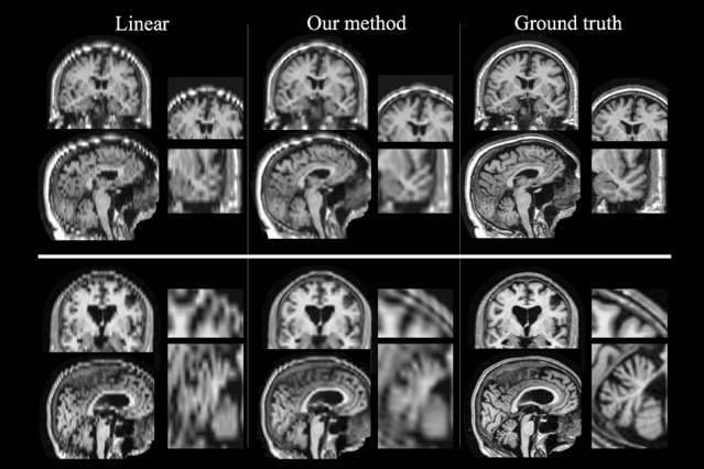 Boosting quality of patient MRIs could enable large-scale studies of stroke outcome