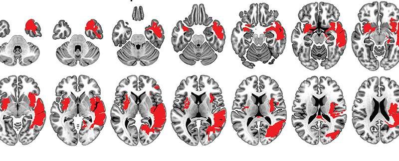 Brain damage is not always damaging
