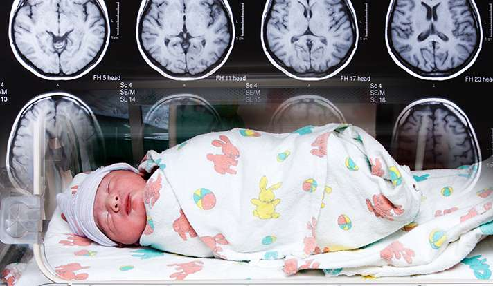 Brain impairments in premature infants may begin in the womb