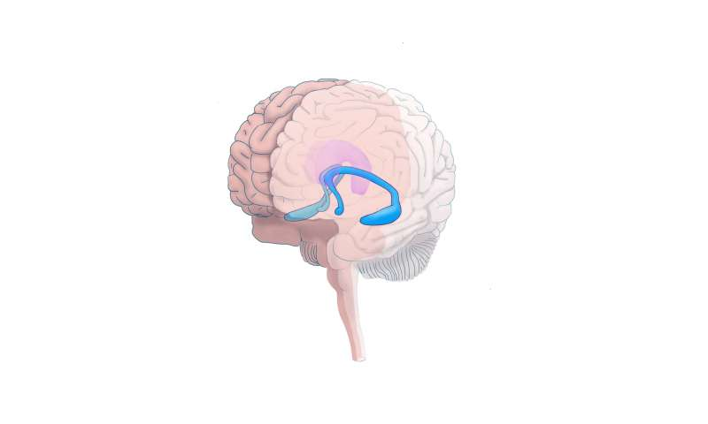 Brain's hippocampal volume, social environment affect adolescent depression