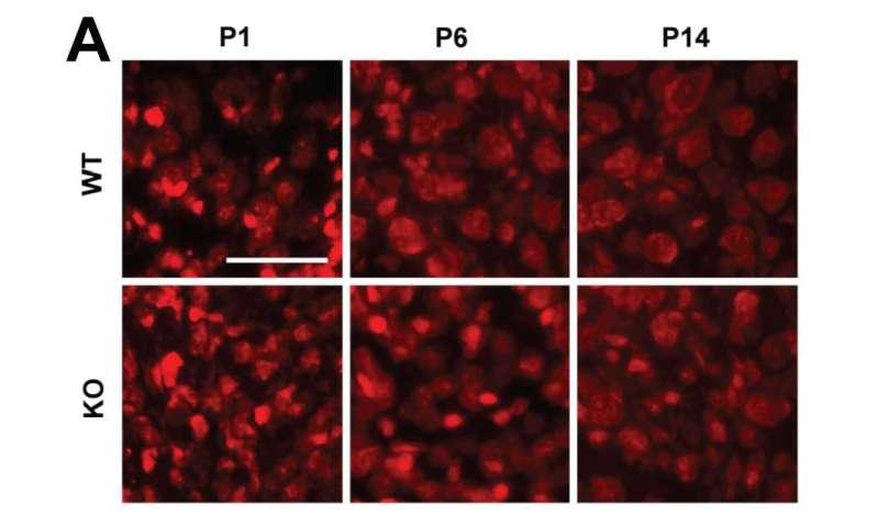 Brainstem changes underlie sound sensitivity in fragile X mouse model
