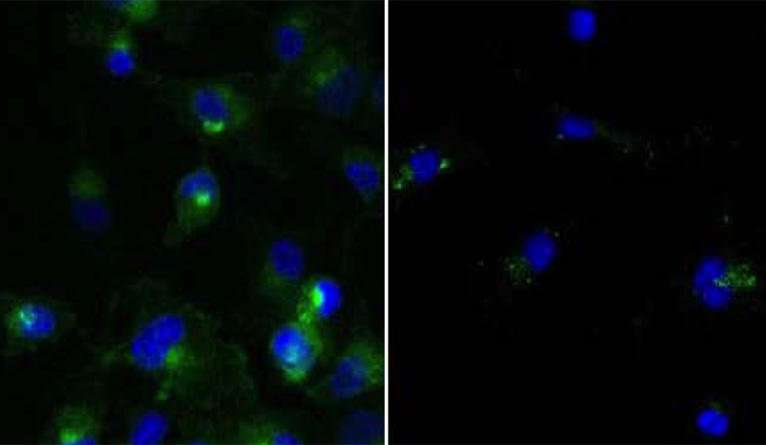 Cellular clean-up can also sweep away forms of cancer