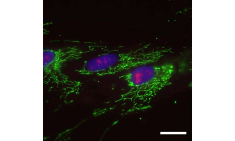 Cellular senescence prevented by the SETD8 enzyme