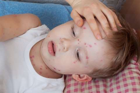 Chickenpox virus fatal in newly discovered immunodeficiency