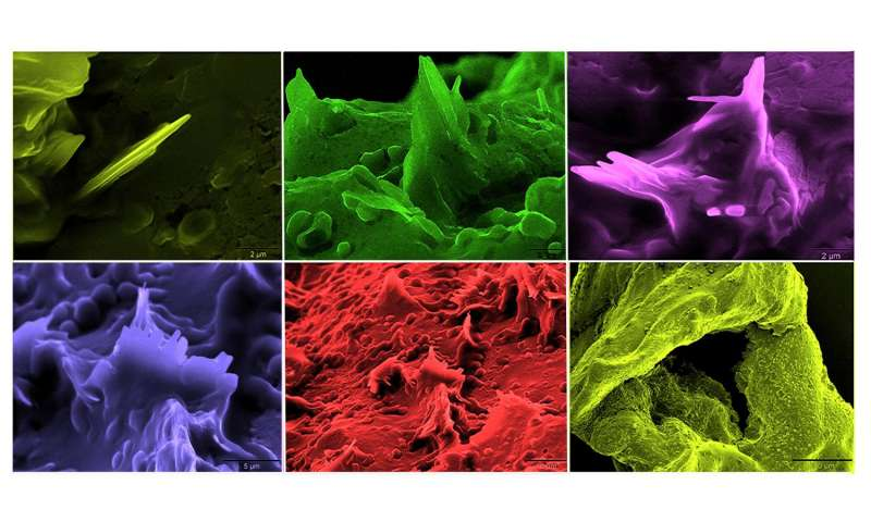 Cholesterol crystals are sure sign a heart attack may loom