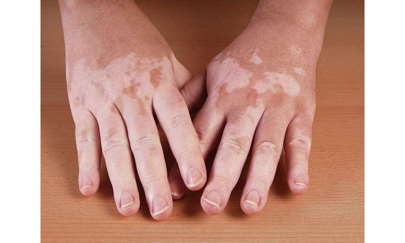 Clinical features of vitiligo linked to age of disease onset