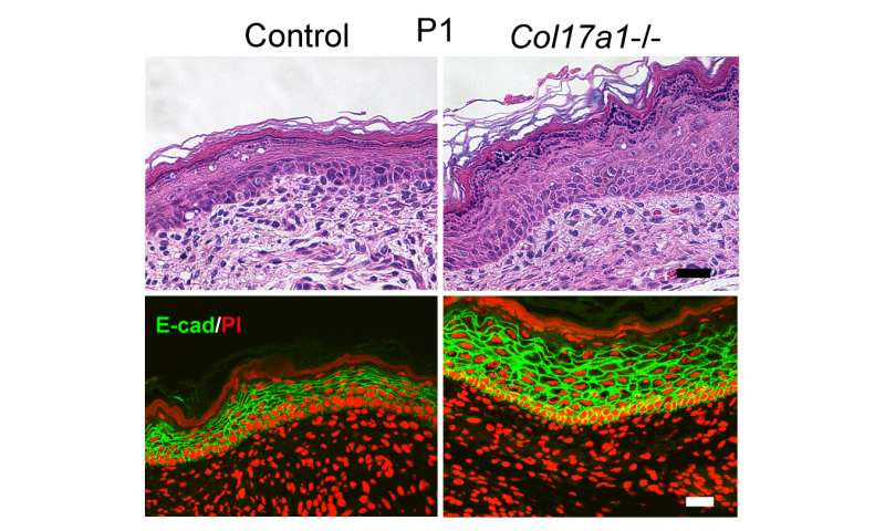 Collagen controlling the thickness and juvenile state of skin