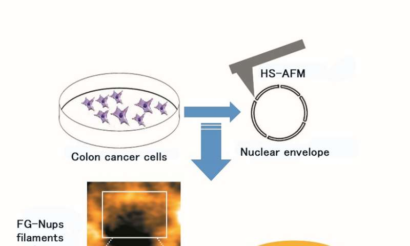 Colon cancer nuclear pore dynamics are captured by HS-AFM