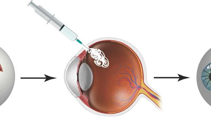 Combating eye injuries with a reversible superglue seal
