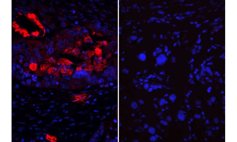 Combination therapy could provide new treatment option for ovarian cancer