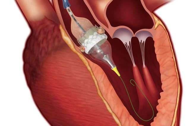 Conscious sedation is a safe alternative to general anesthesia for heart valve procedure