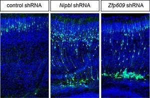 Discovery of gene effects on brain brings scientists closer to understanding rare developmental disorder
