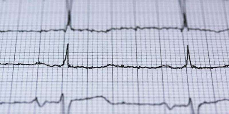 Disparity in care for heart attack patients