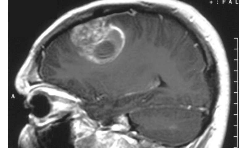 DNA becomes primary target in fight against glioblastoma
