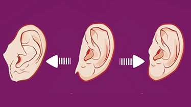 Do your ears hang low? The complex genetics behind earlobe attachment