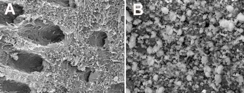 Effects of composites containing bioactive glasses on demineralized dentin