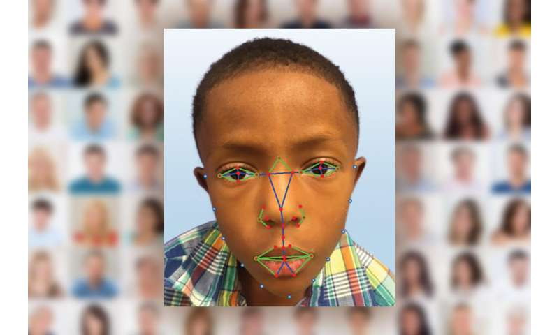 Facial recognition software help diagnose rare genetic disease