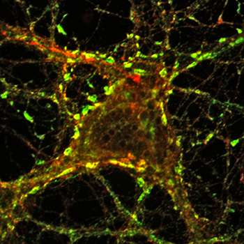 Failure in recycling cellular membrane may be a trigger of Parkinson's