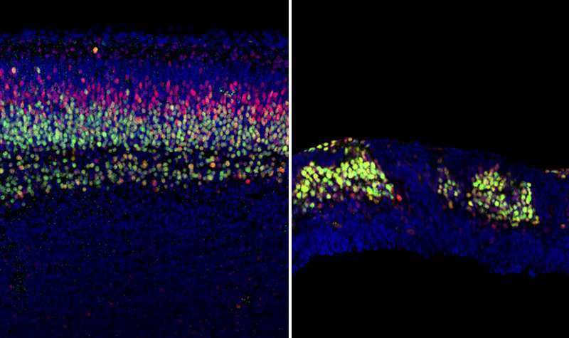 Faulty cell signaling derails cerebral cortex development, could it lead to autism?